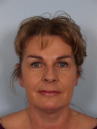Botox Gallery - Patient 1310945 - Image 2