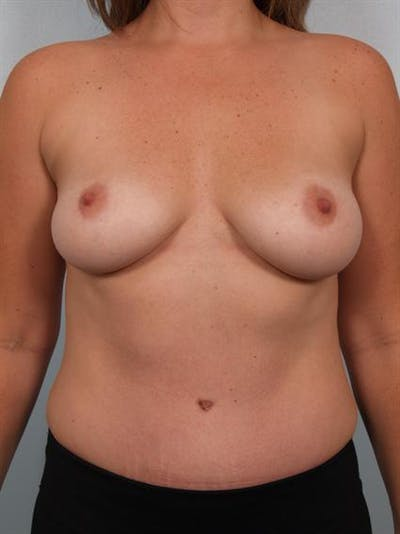 Tummy Tuck Gallery - Patient 1310948 - Image 2