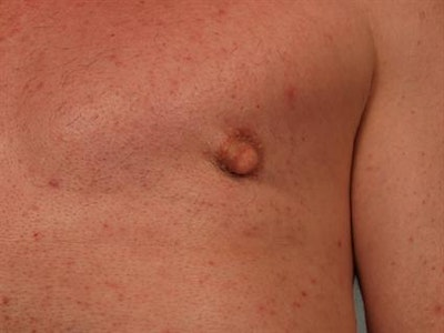 Male Breast/Areola Reduction Gallery - Patient 1310942 - Image 6