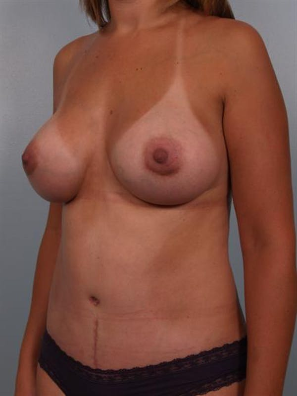 Mommy Makeover Gallery - Patient 1310943 - Image 6
