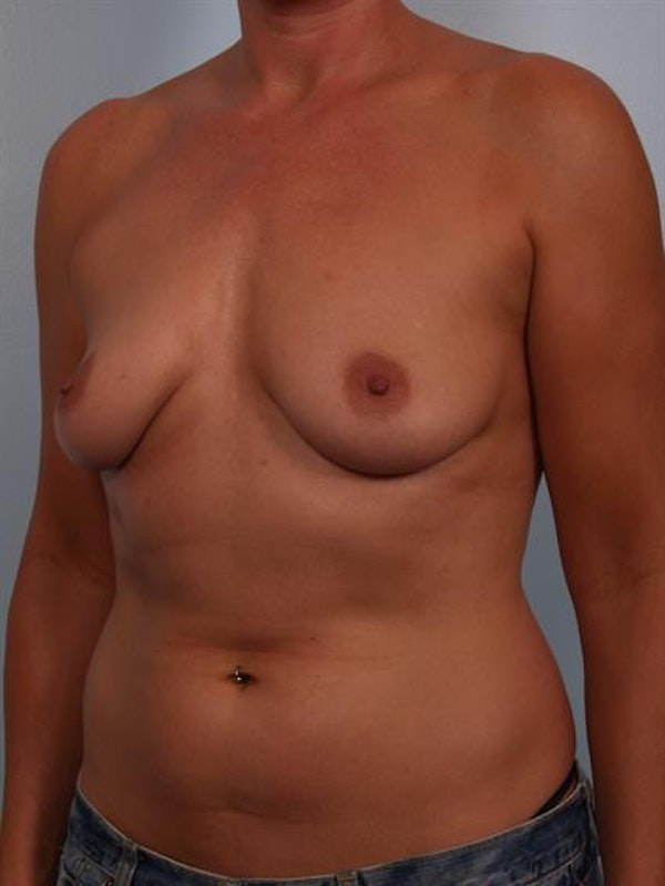 Breast Augmentation Gallery - Patient 1310946 - Image 5