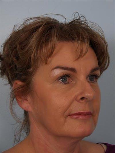 Botox Gallery - Patient 1310945 - Image 4