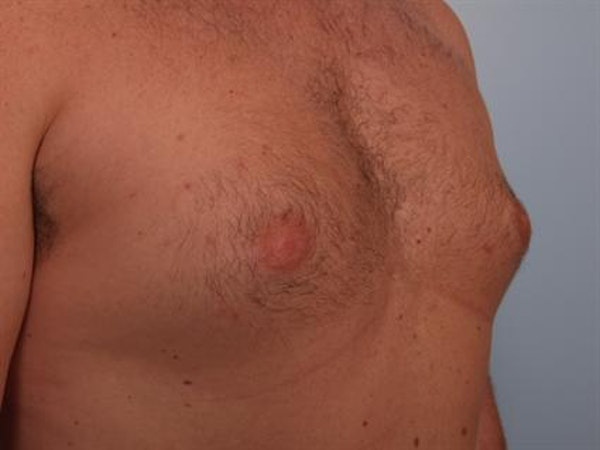 Male Breast/Areola Reduction Gallery - Patient 1310951 - Image 1