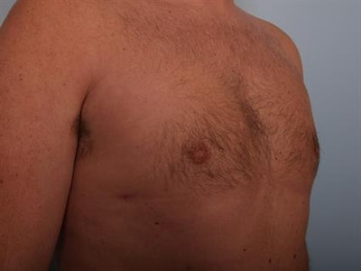 Male Breast/Areola Reduction Gallery - Patient 1310951 - Image 2