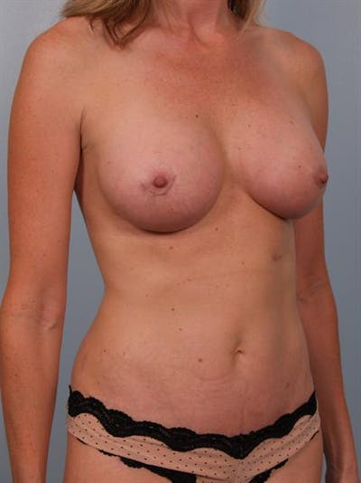 Mommy Makeover Gallery - Patient 1310953 - Image 4