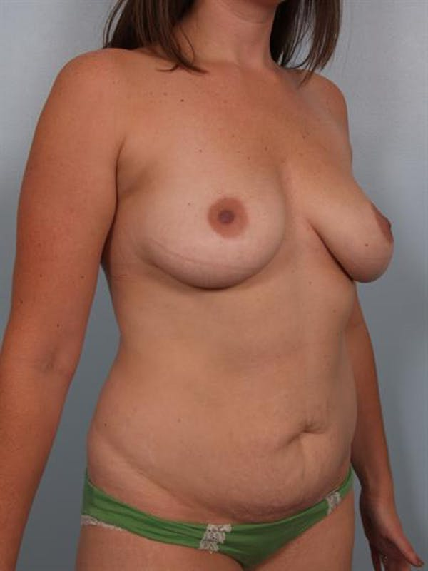 Tummy Tuck Gallery - Patient 1310948 - Image 5