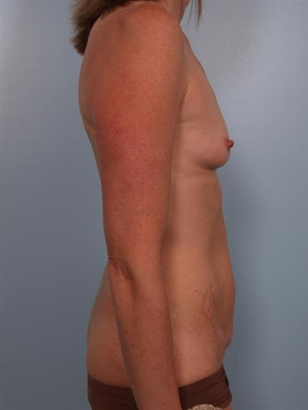 Mommy Makeover Gallery - Patient 1310953 - Image 5