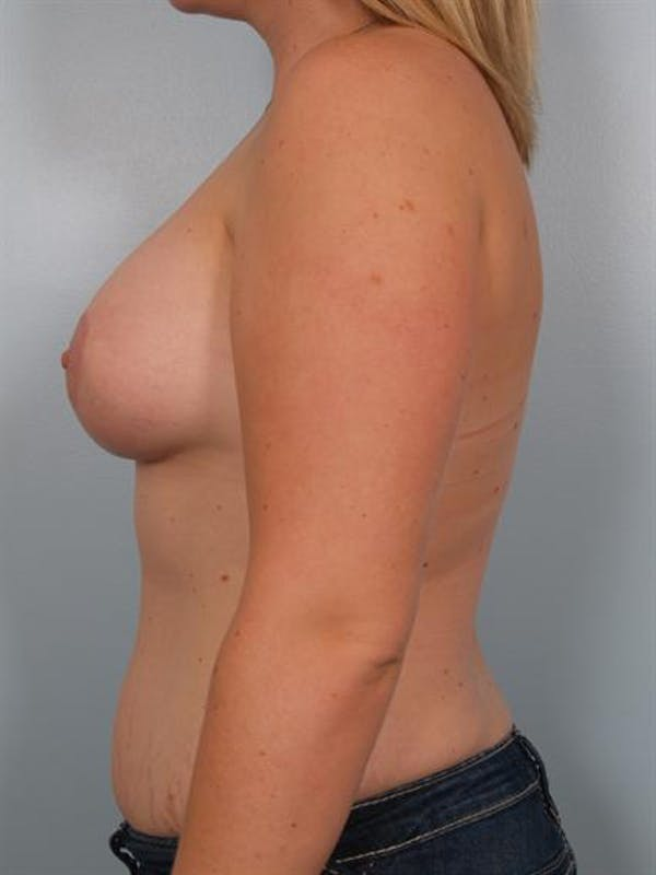 Breast Lift Gallery - Patient 1310950 - Image 4