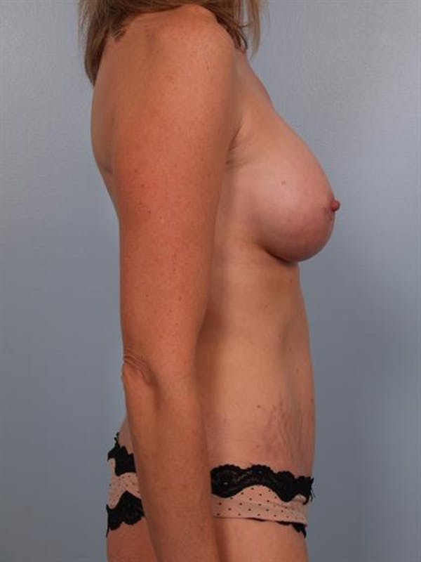 Mommy Makeover Gallery - Patient 1310953 - Image 6