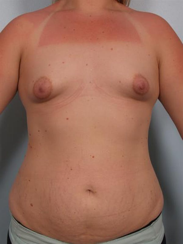 Breast Lift Gallery - Patient 1310950 - Image 1