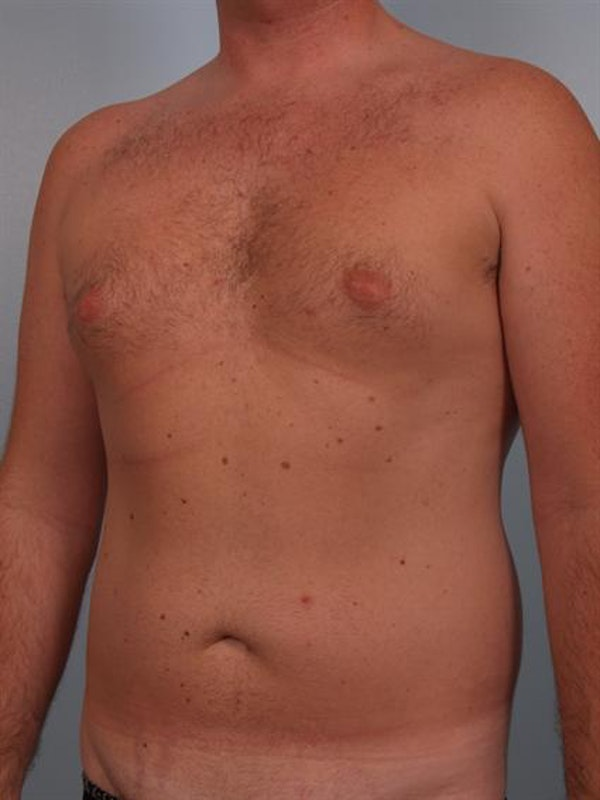 Male Breast/Areola Reduction Gallery - Patient 1310951 - Image 5