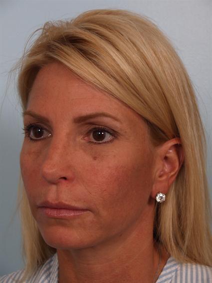 Botox Gallery - Patient 1310952 - Image 2