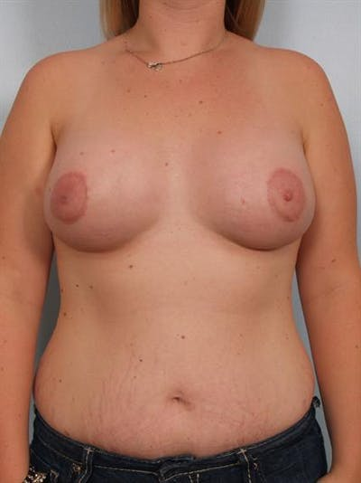 Breast Lift Gallery - Patient 1310950 - Image 2