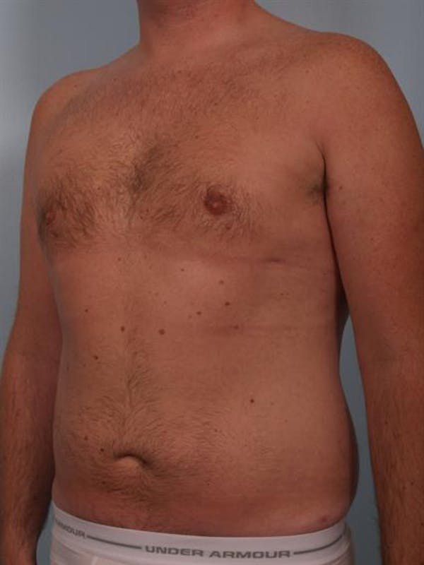 Male Breast/Areola Reduction Gallery - Patient 1310951 - Image 6