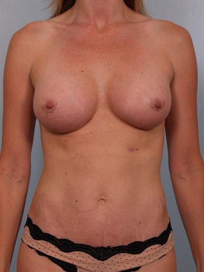 Mommy Makeover Gallery - Patient 1310953 - Image 2