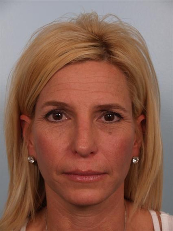 Botox Gallery - Patient 1310952 - Image 3