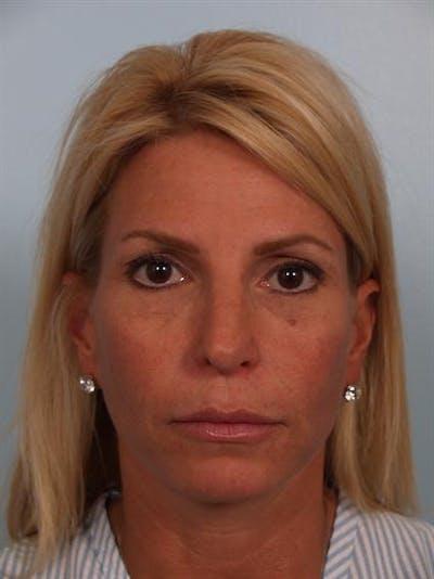 Botox Gallery - Patient 1310952 - Image 4