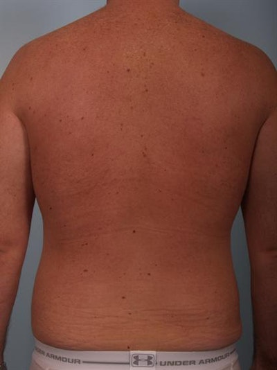 Male Breast/Areola Reduction Gallery - Patient 1310951 - Image 8