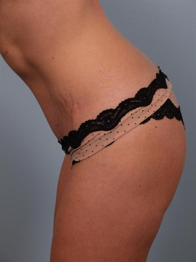 Mommy Makeover Gallery - Patient 1310953 - Image 8