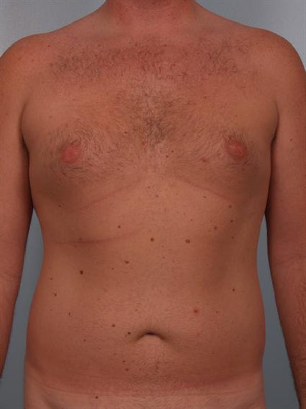 Male Breast/Areola Reduction Gallery - Patient 1310951 - Image 9