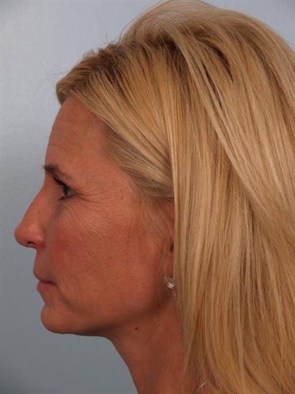 Botox Gallery - Patient 1310952 - Image 5