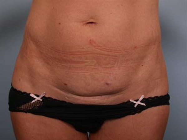 Mommy Makeover Gallery - Patient 1310953 - Image 9