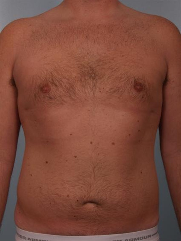 Male Breast/Areola Reduction Gallery - Patient 1310951 - Image 10