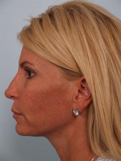 Botox Gallery - Patient 1310952 - Image 6