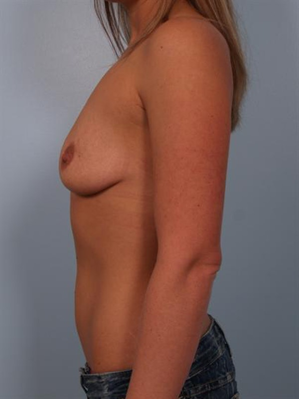 Breast Augmentation Gallery - Patient 1310957 - Image 5