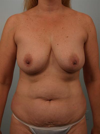Breast Lift Gallery - Patient 1310962 - Image 1