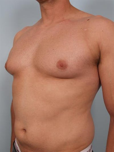 Male Breast/Areola Reduction Gallery - Patient 1310958 - Image 1