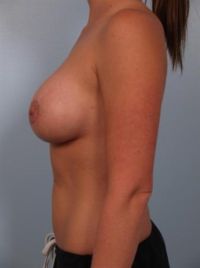 Breast Augmentation Gallery - Patient 1310957 - Image 6