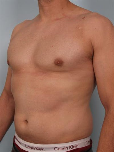Male Breast/Areola Reduction Gallery - Patient 1310958 - Image 2