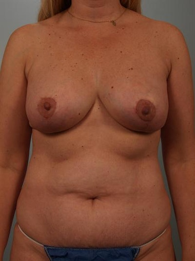 Breast Lift Gallery - Patient 1310962 - Image 2