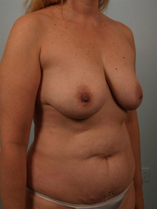 Breast Lift Gallery - Patient 1310962 - Image 3