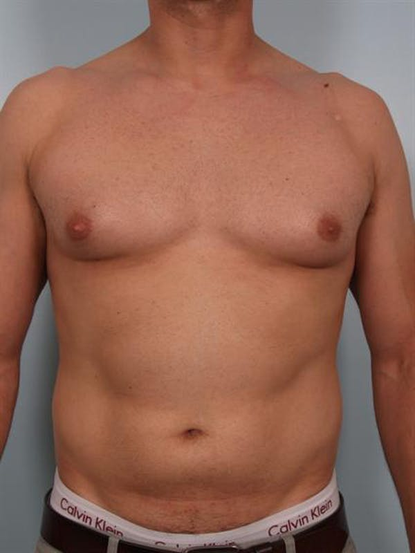 Male Breast/Areola Reduction Gallery - Patient 1310958 - Image 3