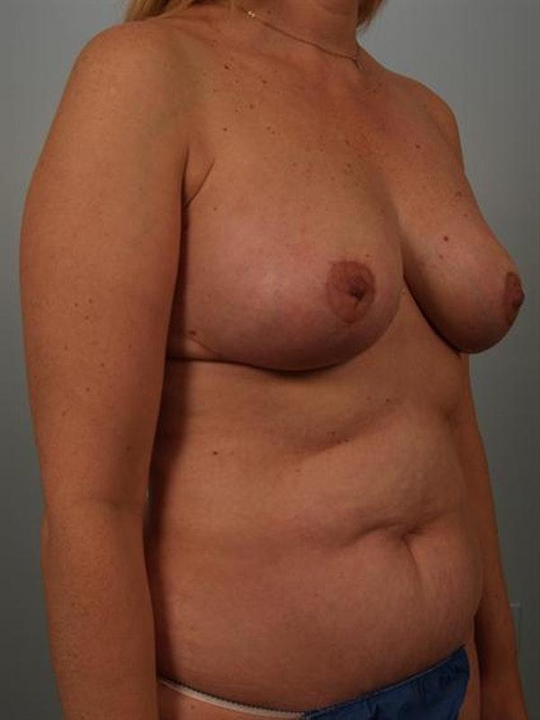 Breast Lift Gallery - Patient 1310962 - Image 4