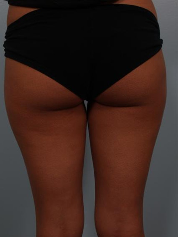 Power Assisted Liposuction Gallery - Patient 1310961 - Image 1