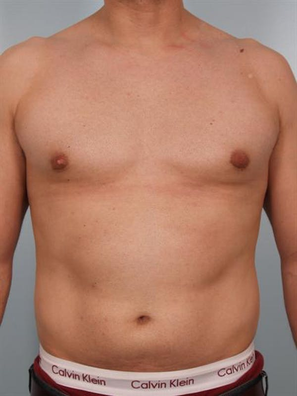 Male Breast/Areola Reduction Gallery - Patient 1310958 - Image 4