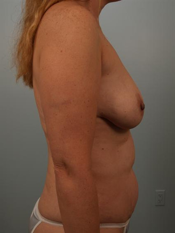 Breast Lift Gallery - Patient 1310962 - Image 5