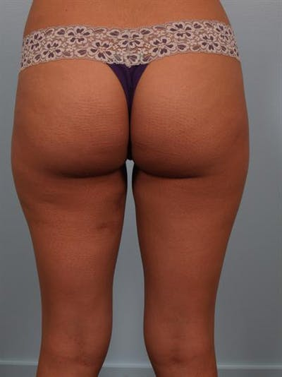 Power Assisted Liposuction Gallery - Patient 1310961 - Image 2