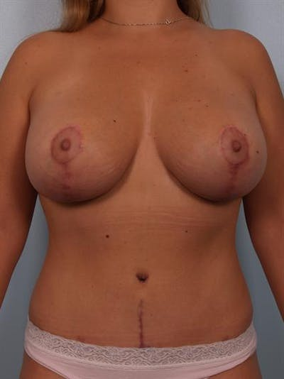 Tummy Tuck Gallery - Patient 1310960 - Image 4