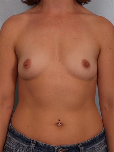 Breast Augmentation Gallery - Patient 1310965 - Image 1