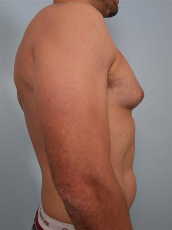 Male Breast/Areola Reduction Gallery - Patient 1310958 - Image 5