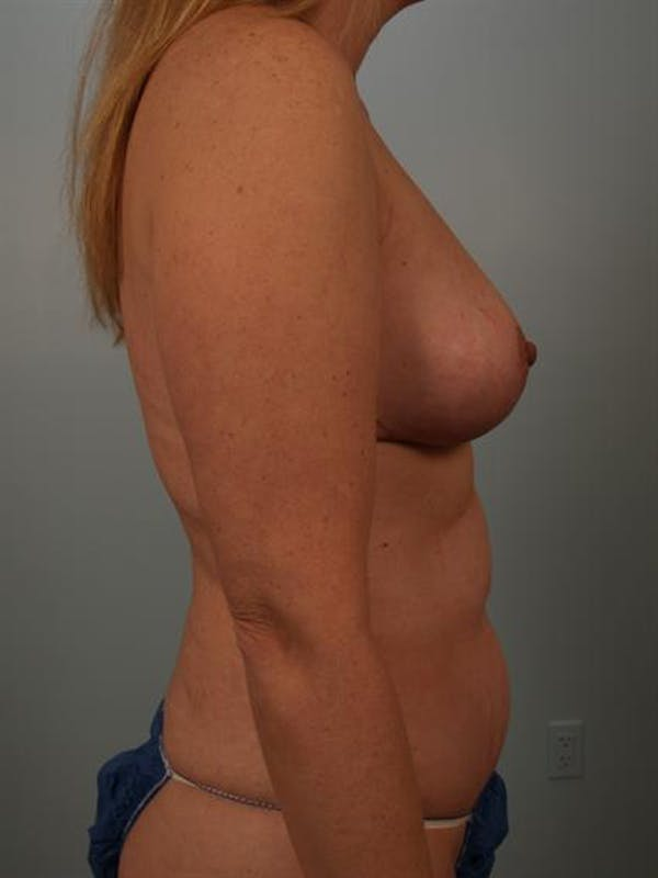 Breast Lift Gallery - Patient 1310962 - Image 6