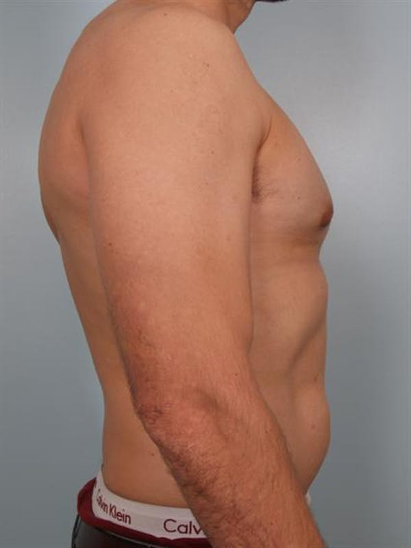 Male Breast/Areola Reduction Gallery - Patient 1310958 - Image 6