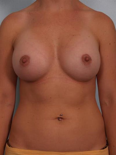 Breast Augmentation Gallery - Patient 1310965 - Image 2