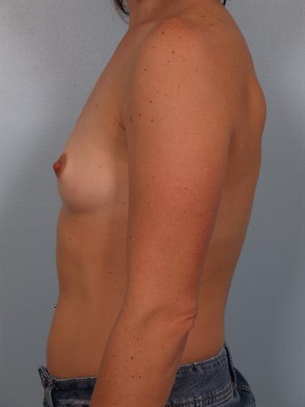 Breast Augmentation Gallery - Patient 1310965 - Image 3