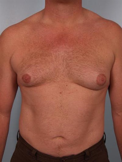 Male Breast/Areola Reduction Gallery - Patient 1310967 - Image 1