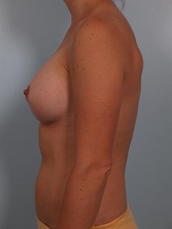 Breast Augmentation Gallery - Patient 1310965 - Image 4